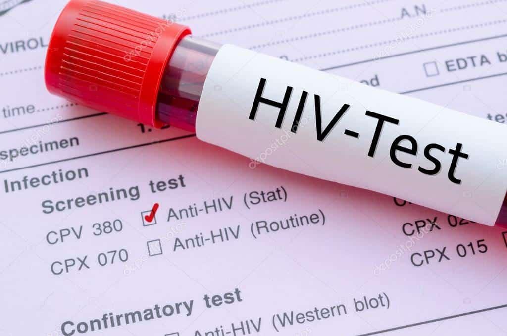 тест на СПИД